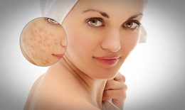 10 nguyên liệu thiên nhiên giúp điều trị chàm hiệu quả (P1)