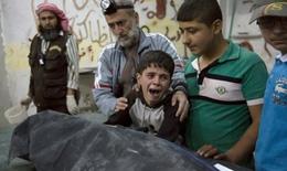 Tâm thư gửi ông Obama của các bác sĩ cuối cùng nơi chảo lửa Syria