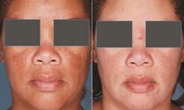 Nám da và phương pháp điều trị
