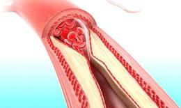 Tích tụ calci trong động mạch chỉ báo nguy cơ đau tim
