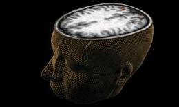 Thiết bị đọc trí não
