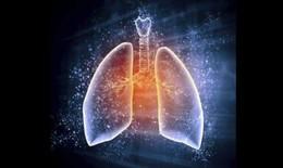 Điều trị bệnh phổi mạn tính: Ghép tế bào gốc tái tạo lá phổi hỏng