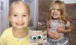 Tạo mắt cho bé gái 3 tuổi từ mỡ bụng