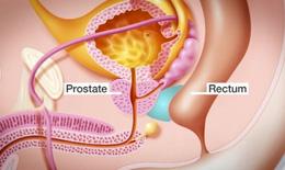 Liệu pháp giảm tác dụng phụ xạ trị ung thư tiền liệt tuyến