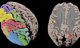 Phát hiện bí mật về cấu trúc di truyền của bệnh tâm thần phân liệt
