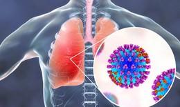 Nguyên nhân dẫn đến viêm phổi nghiêm trọng ở bệnh nhân COVID-19