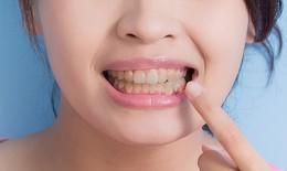 Uống thuốc kháng sinh có làm răng ố vàng?