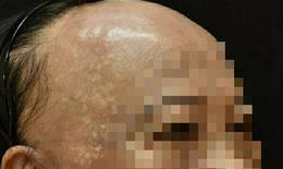 Ca bệnh hiếm gặp, bệnh nhân rụng tóc xơ hoá vùng trán