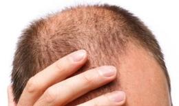 Thuốc gì trị viêm chân tóc?