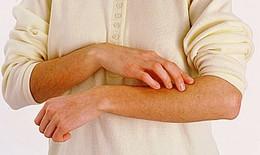 Thuốc hay phòng trị ngứa da ở người cao tuổi