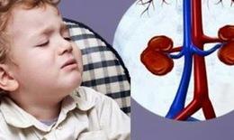 Những điều cần biết về hội chứng thận hư ở trẻ em