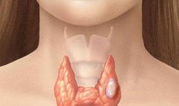 Ai dễ bị ung thư tuyến giáp?