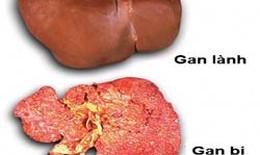 Không chủ quan với bệnh u gan