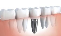 Phòng viêm nhiễm sau phục hình răng bằng cấy ghép implant
