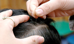 Tóc bạc sớm, rụng tóc nên ăn gì?