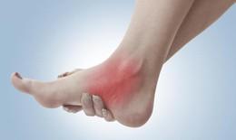 Bong gân khớp cổ chân và cách xử trí