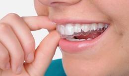 Trị chứng nghiến răng ở trẻ