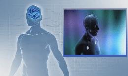 Kích thích não sâu bằng cấy dây dẫn điện vào não cải thiện chức năng nhận thức trong bệnh Alzheimer
