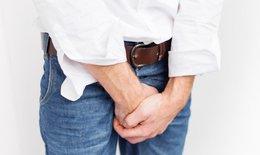 Giãn tĩnh mạch tinh có bị vô sinh?