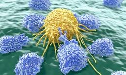 Điều trị ung thư - Hướng  đích, giảm tác dụng phụ