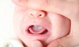 Nhận biết trẻ bị nấm lưỡi