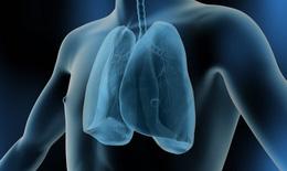 Nguyên nhân gây áp-xe phổi