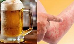 Bia, rượu khiến bệnh dị ứng đa dạng, phức tạp