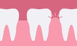 Phòng tránh viêm nướu răng