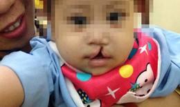 Phẫu thuật nhân đạo cho 50 trẻ có khe hở môi- vòm miệng