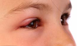 Lẹo mắt, chữa thế nào?