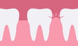 Phòng tránh bệnh viêm nướu răng