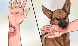 Coi chừng mất mạng khi bị chó dại cắn