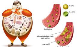 Tăng mỡ máu và cách kiểm soát