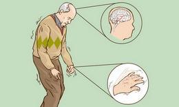 Khắc phục bất lợi khi dùng levodopa trị Parkinson