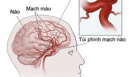 Cần phát hiện sớm phình mạch não