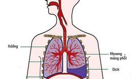 Biến chứng nguy hiểm của bệnh lao phổi