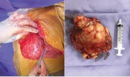 Phẫu thuật lấy thành công khối u trung thất khổng lồ nằm đè tim