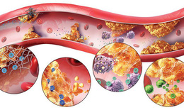 Tại sao uống thuốc trị tăng huyết áp lại tăng mỡ máu?