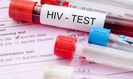 COVID-19 có thể ảnh hưởng đến mục tiêu toàn cầu phòng, chống HIV/AIDS