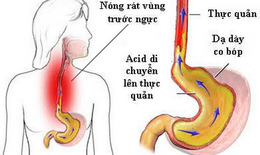 Trào ngược dạ dày - thực quản gây ho nhiều, vì sao?