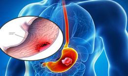 Bài thuốc dân gian trị viêm loét dạ dày - tá tràng