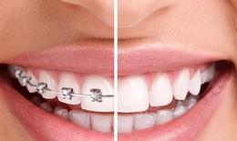 Chỉnh nha có khiến răng bị lung lay?