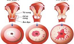 HPV gây ra ung thư gì?