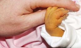 Vàng da ở trẻ sơ sinh có nguy hiểm?