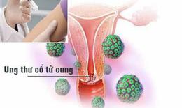 Cam kết toàn cầu hướng đến loại bỏ ung thư cổ tử cung