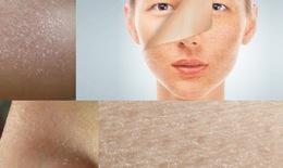 Cảnh giác với biến chứng do da khô