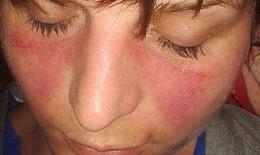 Có thuốc chữa khỏi bệnh lupus ban đỏ?