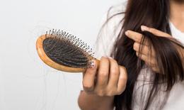Cách ngăn ngừa rụng tóc sau sinh