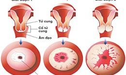 Dấu hiệu cảnh báo ung thư cổ tử cung