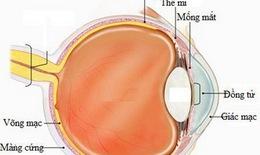 Khả quan về loại thuốc mới trị ung thư mắt hiếm gặp